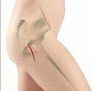 Posterior Hip Replacement